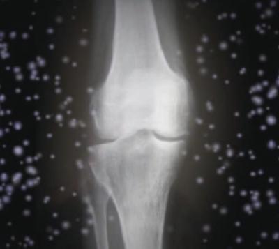 healthy bones? think magnesium